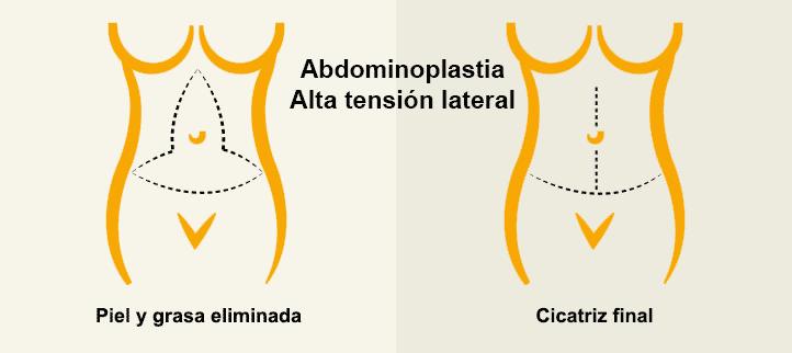 Abdominoplastia o lipoescultura del abdomen de alta tension lateral